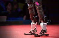New Bionics Let Us Run, Climb and Dance